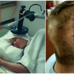 Zostało mu 7 miesięcy, maksymalnie rok życia… nie ma żadnych metod leczenia… nieoperacyjny… IV stopień… guz mózgu…